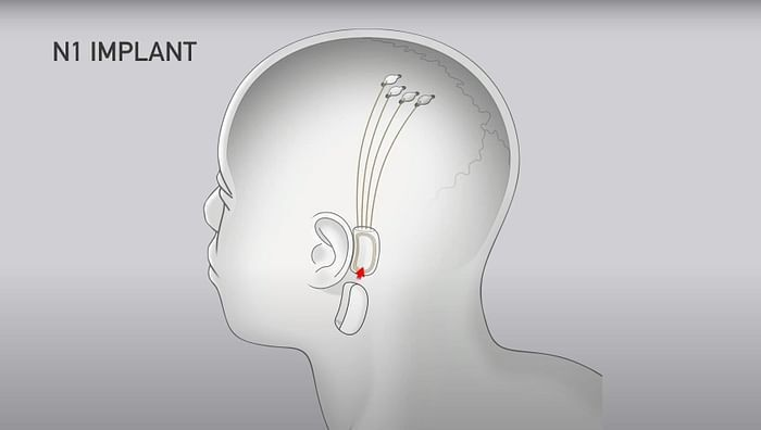 Для операции потребуется разрез черепа диаметром 2 мм.
