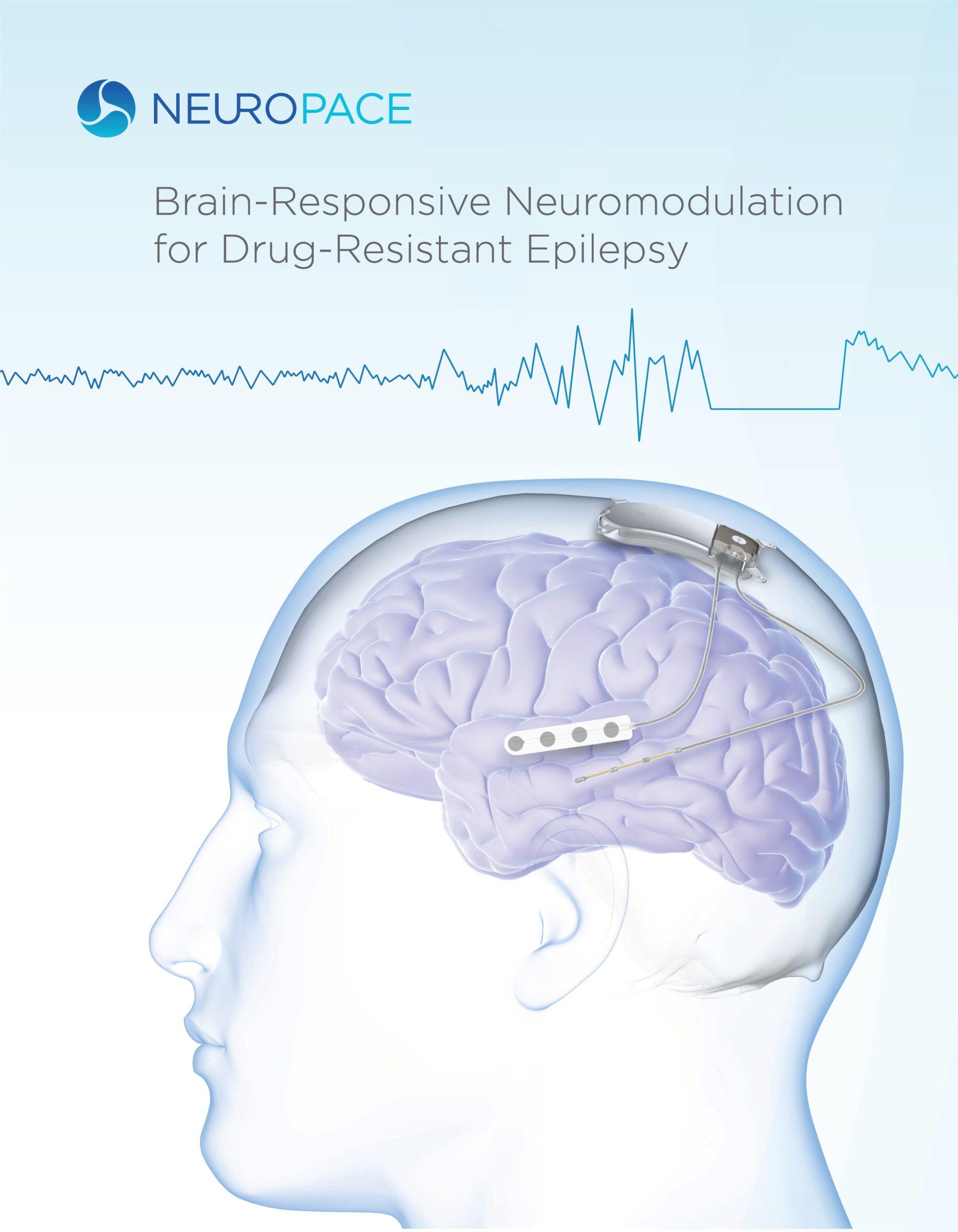 О компании Neuropace Inc.